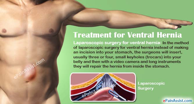 treatment of ventral hernia & its complications, risk factors, Skeleton