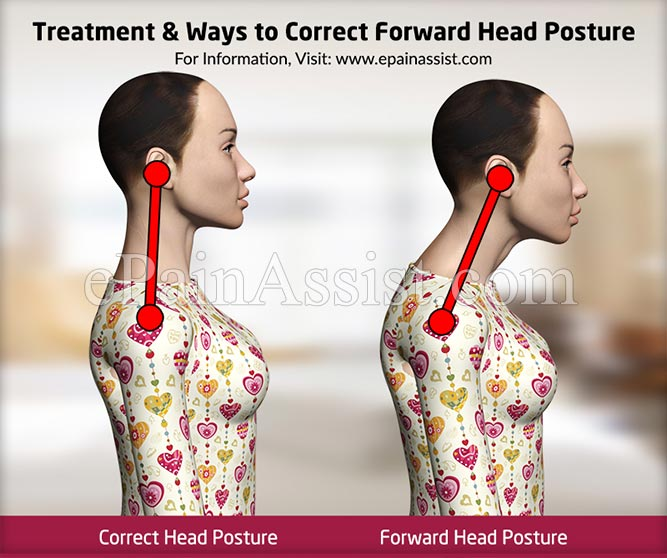 Treatment & Ways to Correct Forward Head Posture