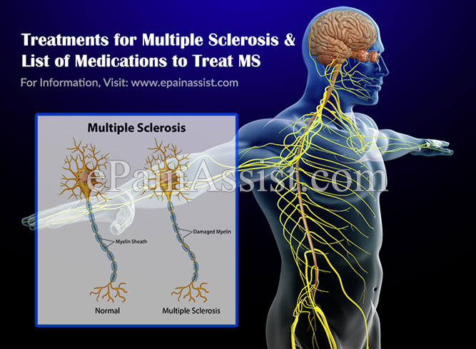 Treatments for Multiple Sclerosis & List of Medications to Treat MS
