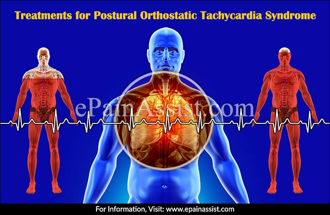 Treatments for Postural Orthostatic Tachycardia Syndrome