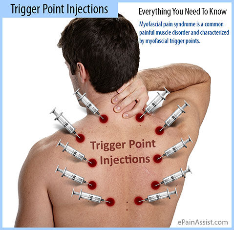 Trigger Point Injections Everything You Need To Know