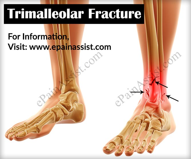 Trimalleolar Fracture Causes Signs Symptoms Treatment Conservative