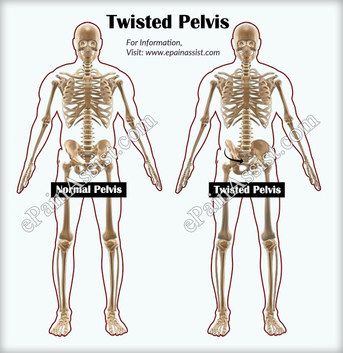What Is Twisted Pelvis How Is It Treated
