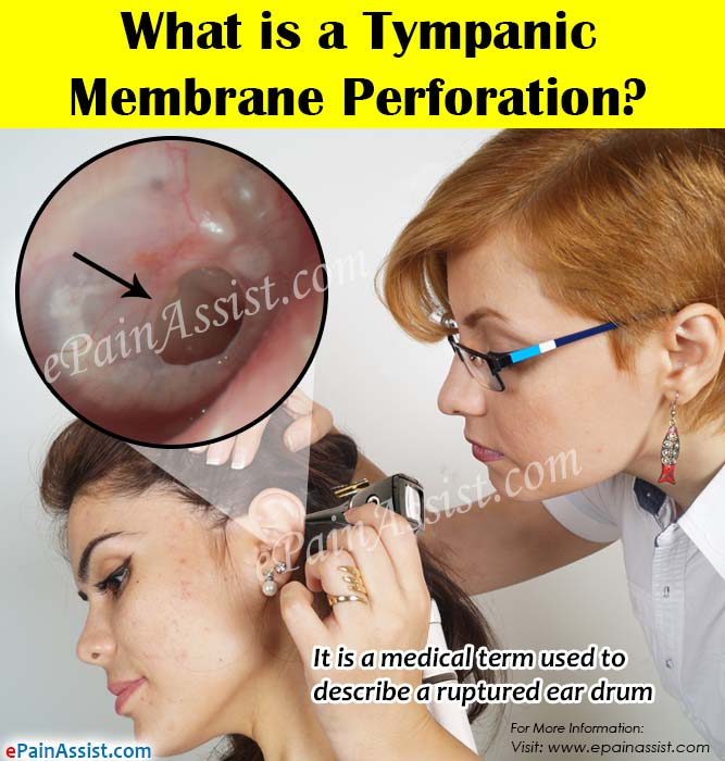 What is a Tympanic Membrane Perforation?