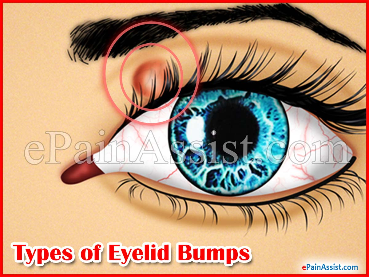 Types of Eyelid Bumps