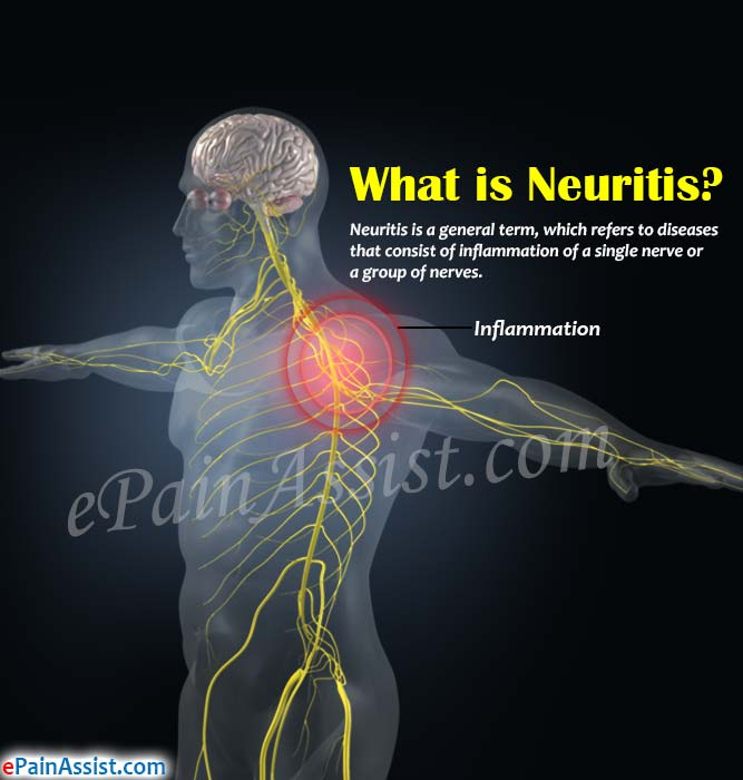 What is Neuritis?