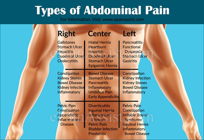 types of abdominal pain or stomach ache based on organ systems, Skeleton