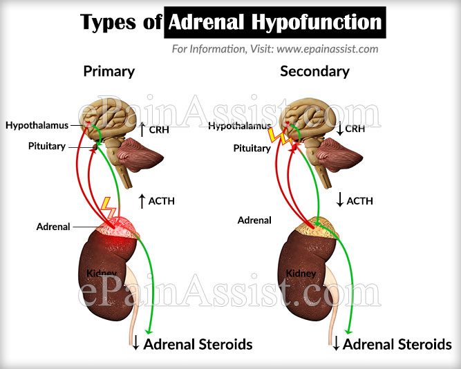 Types of Adrenal Hypofunction