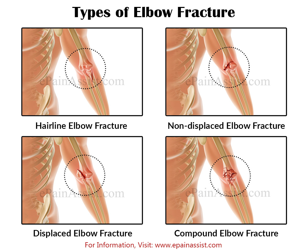 Types of Elbow Injuries