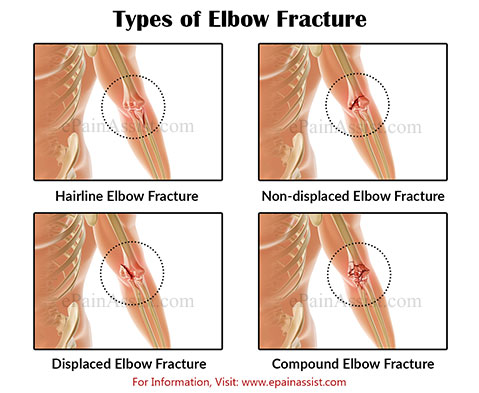 Types of Elbow Fracture
