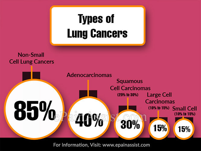 Types of Lung Cancers: Detailed Explanation