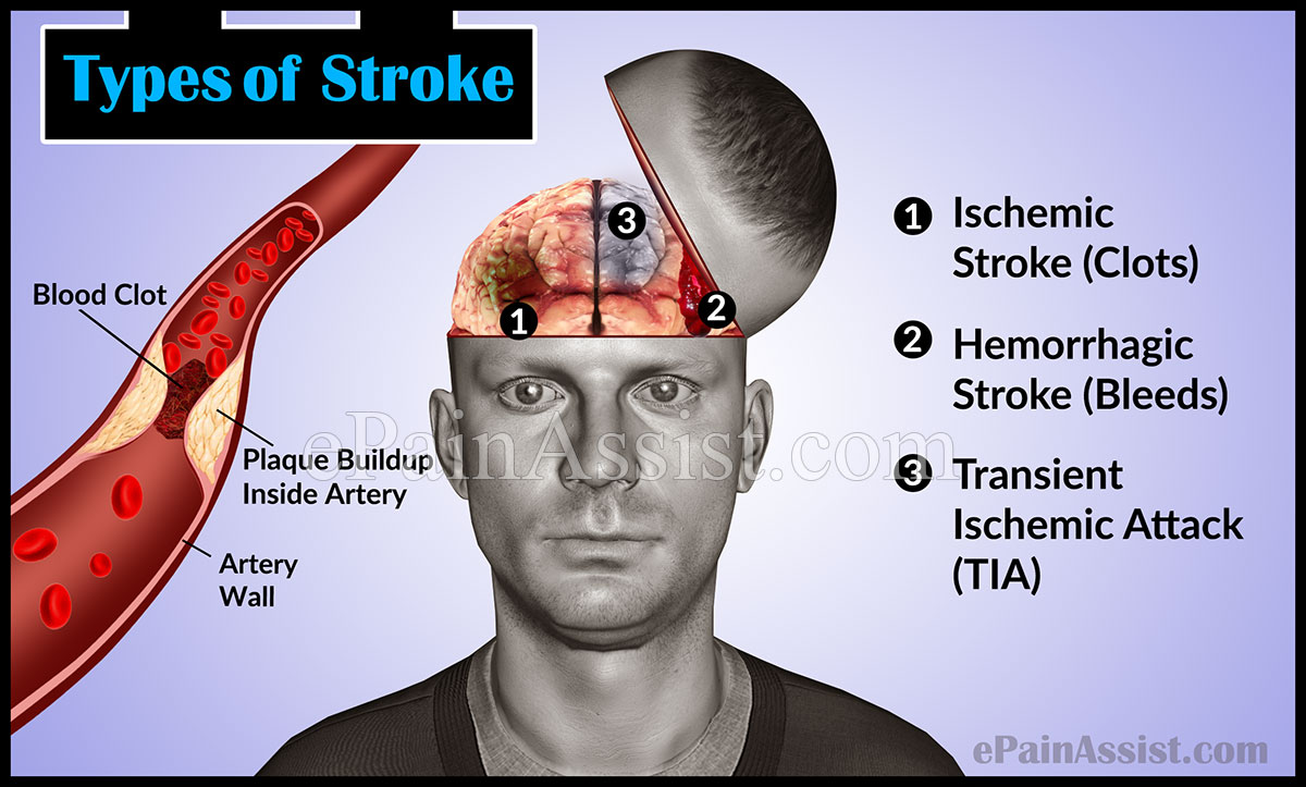 Types of Stroke: Ischemic Stroke, Hemorrhagic Stroke, TIA