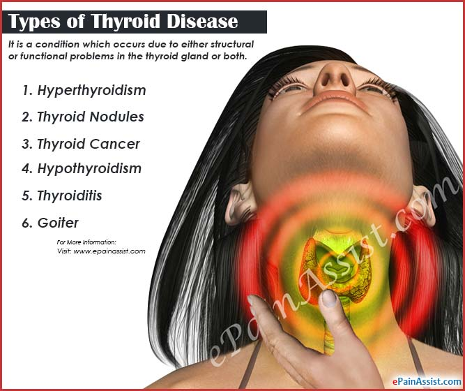 Thyroid Disease Types Causes Symptoms Treatment Prognosis