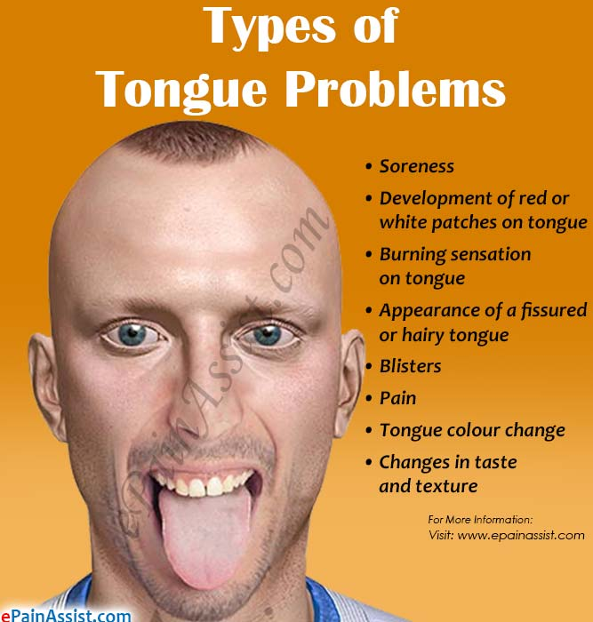 Types of Tongue Problems