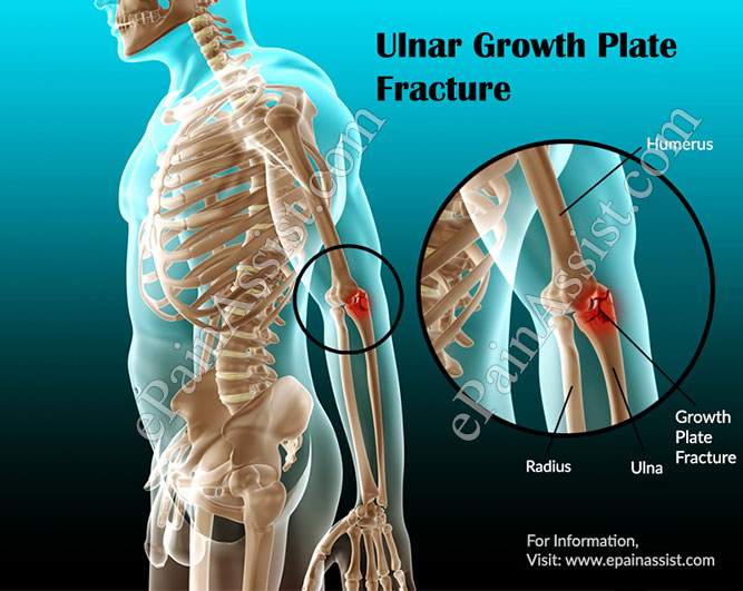 Ulnar Growth Plate Fracture