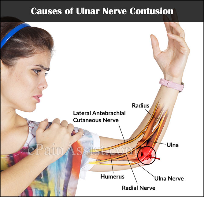 ulnar neuropathy treatment