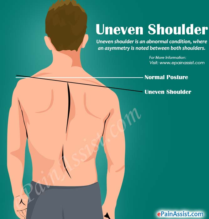 6 Exercises To Fix Uneven Shoulder