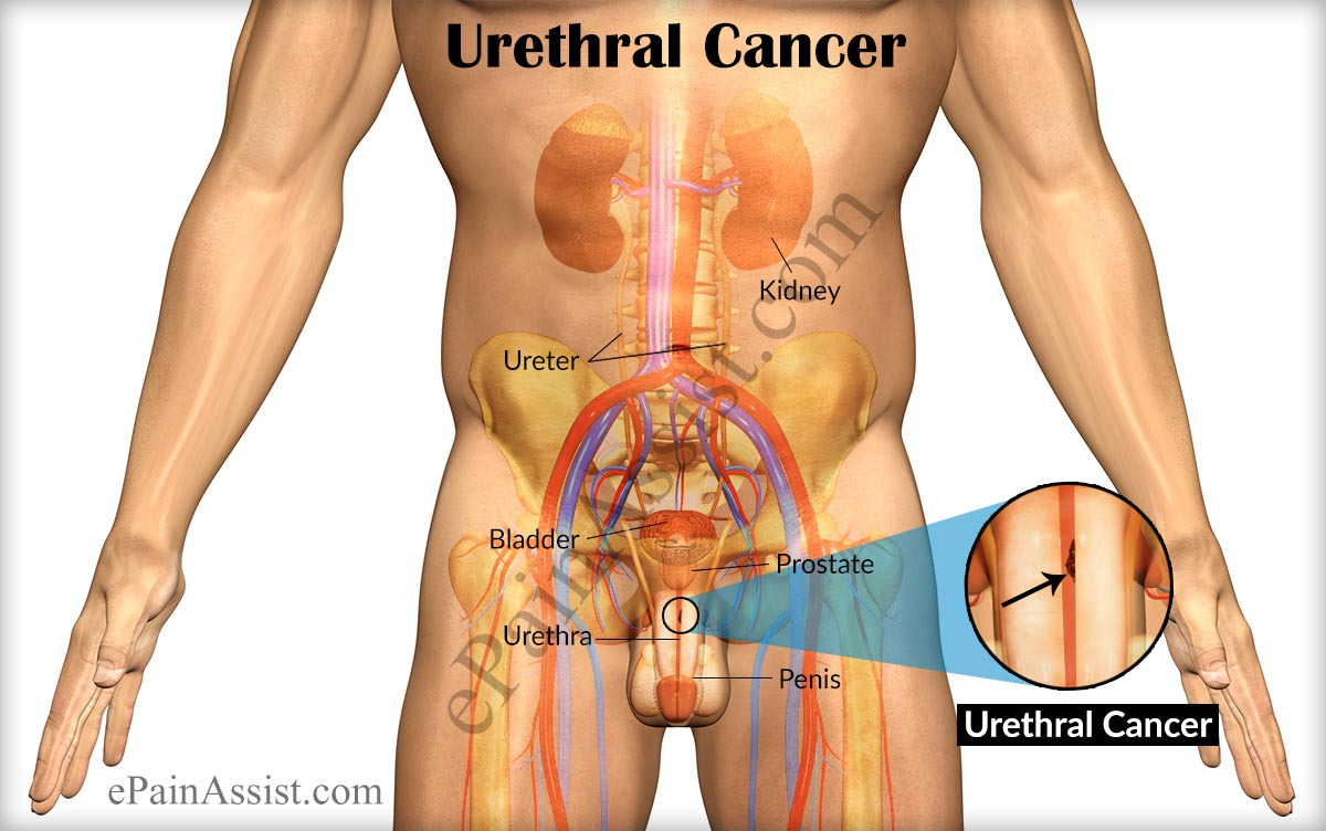 urethral cancer|symptoms|stages|treatment-surgery, radiation, Skeleton