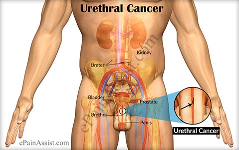 Urethral Cancer Symptoms Stages Treatment Surgery