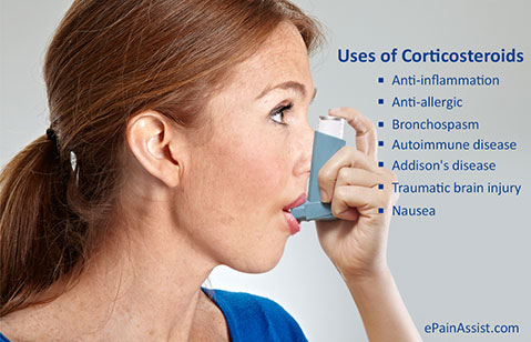 how to get a corticosteroid injection