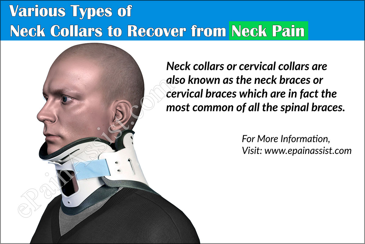 Various Types of Neck Collars to Recover from Neck Pain