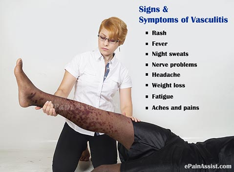 Signs and Symptoms of Vasculitis