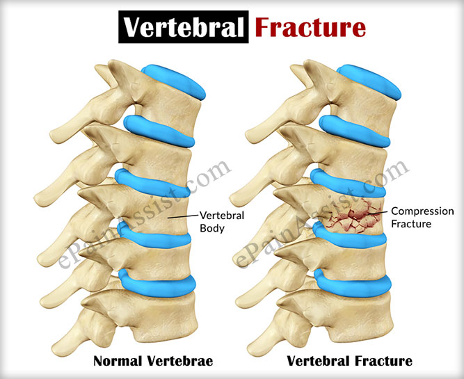 diagram of vertebral fracture vertebral fracture|causes|types|symptoms|risk factors ... diagram of interior of 2002 dodge caravan