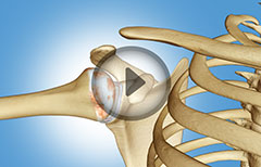 5 Major Types of Shoulder Joint Arthritis: Osteoarthritis, Pseudogout