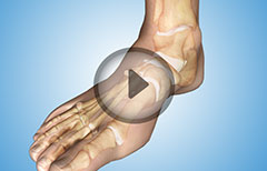 Ankle Joint Diagnostic Arthroscopy: Procedure, Types of Anesthesia, Monitoring