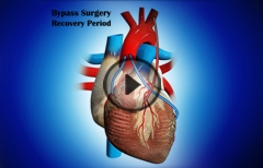 Bypass Surgery Recovery Period