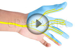 Carpal Tunnel Syndrome and Carpal Tunnel Release