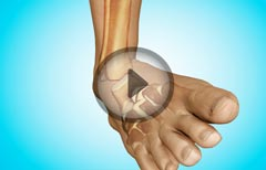 Causes of Ankle Joint Pain: Bursitis, Sprain, Tendonitis, Dislocation, Fracture