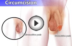 Circumcision - The Best Treatment to Remove Long Foreskin & Phimosis