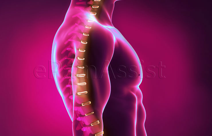 back pain spondylothesis
