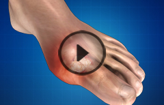 Gout : Treatment, Causes, Massage Therapy, Prevention