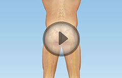 Hip Joint Diagnostic Arthroscopy
