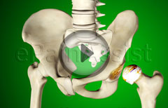 Watch How Hip Replacement Surgery is Performed