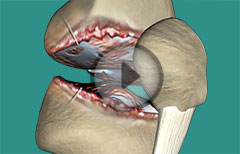 Knee Joint Arthroscopy: Diagnositic, Therapeutic, Procedure- Anesthesia, Skin Incision