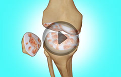 Knee Replacement Surgery and Arthroscopy for Osteoarthritis