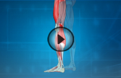 Leg Cramps: Causes and Treatment