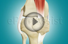 Ligaments Of The Knee, ACL, PCL, and Collateral Ligaments.