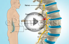 Lumbar Facet Joint Injection
