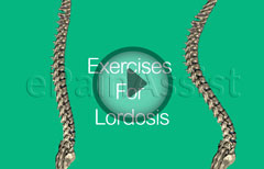 Lumbar Lordosis, Its Causes, and Exercises