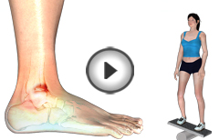Physical Therapy & Rehab for Anterior Ankle Impingement
