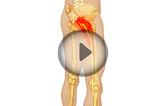 Piriformis Syndrome Explained! Watch How It Is Caused, Know Its Treatment, Symptoms, Signs