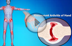 Rheumatoid Arthritis Of Hands : Symptoms, Signs, Treatment