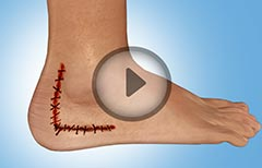 Surgical Treatment for Calcaneus Fracture or Broken Heel, Its Types