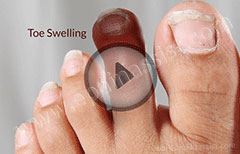 Swollen Toe: Treatment, Causes, Symptoms