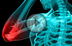 Watch Video of What is Elbow Pain, Treatment for Elbow Pain, Exercises
