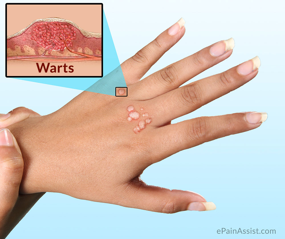 virus that causes warts #10